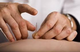 Akupunktura-pri-prostatit