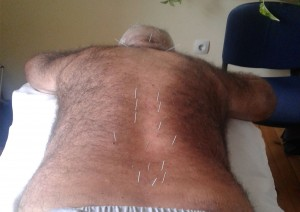 Akupunktura-Bolka-v-Krasta