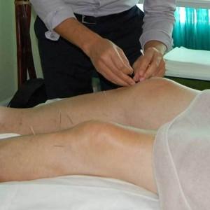 Akupunktura-pri-celulit