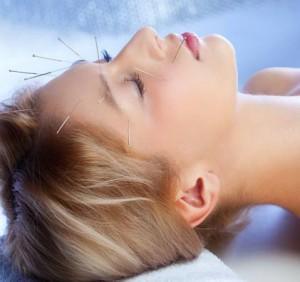 Akupunktura-pri-facialis
