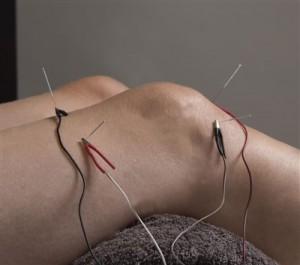 Elektroakupunktura-na-koljano