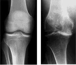 Koljano-Osteoartrit-rentgenografija