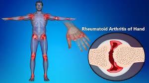 Revmatoiden-artrit