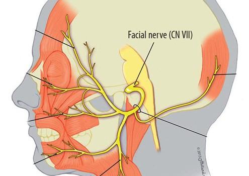 Анатомия и място на увреда на лицевия нерв