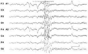 EEG-pri-Epilepsia