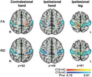 Brain-effects